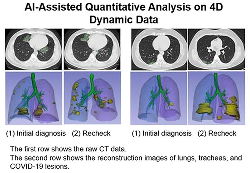 ภาพแถวบนแสดงให้เห็นข้อมูลดิบที่ได้จากการตรวจ CT ภาพแถวล่างแสดงให้เห็นภาพที่สร้างขึ้นใหม่ของปอด หลอดลม และรอยโรคโควิด-19